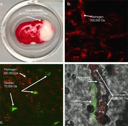 TTC stained brain slice from an aged rat following MCAO and reperfusion